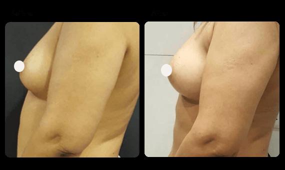Breast augmentation surgery in Gurgaon