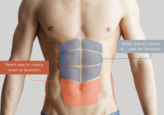 Six Pack Abs Surgery in Gurgaon