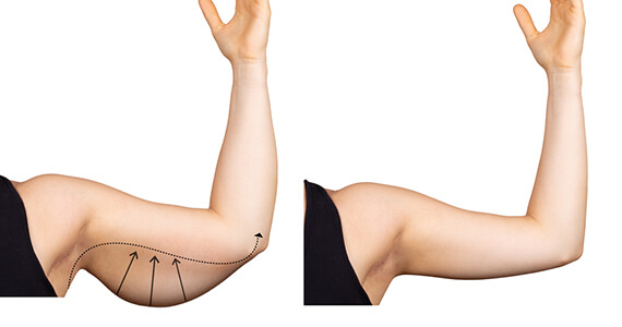 Arm Lift Surgery in Gurgaon