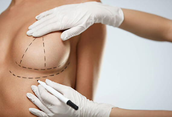 Breast Reduction Surgery in Gurgaon