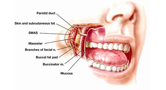 Buccal Pad Fat Removal Surgery in Gurgaon