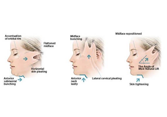 Facelift Surgery in Gurgaon