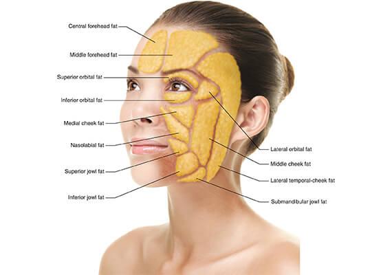Facial Fat Grafting Surgery in Gurgaon