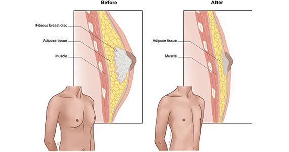 Gynecomastia Surgery in Gurgaon