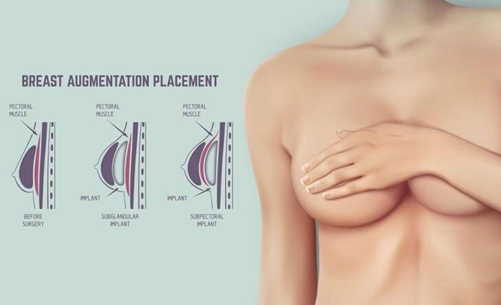 Breast Augmentation in Gurgaon