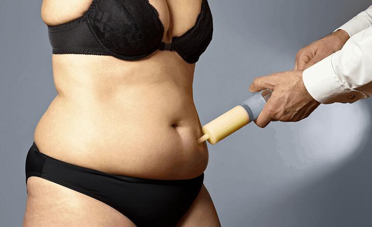 Liposuction Surgery in Gurgaon