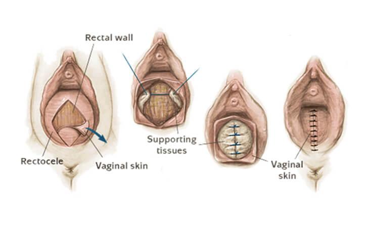 Vaginal Tightening Surgery in Gurgaon