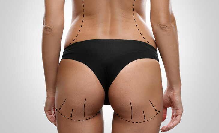 brazilian butt lift surgery in delhi