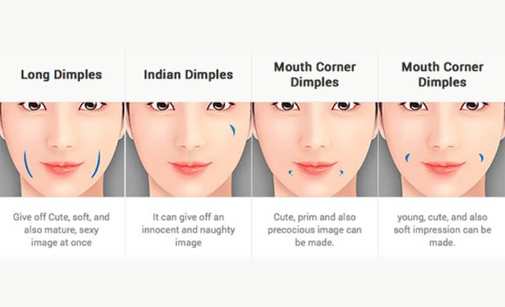 Dimple creation surgery in gurgaon